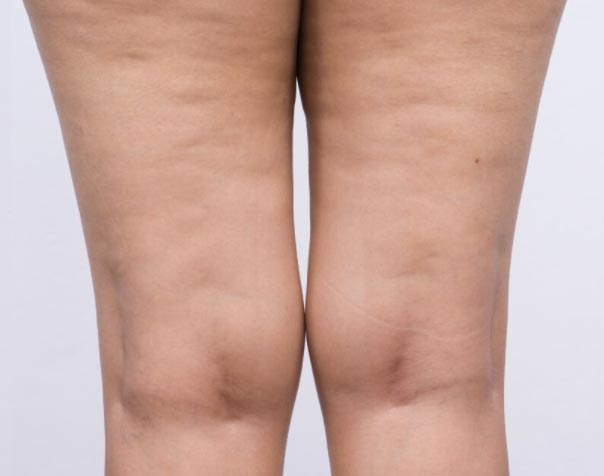 cellulite-how-to-get-rid-of-cellulite