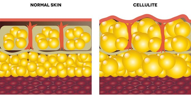 I'm Skinny With Cellulite - Is this normal? Cellulite-Cross-Section