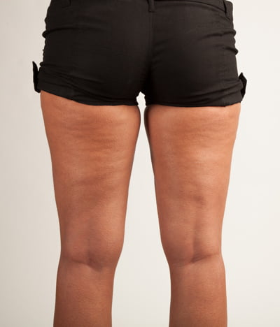 I'm Skinny With Cellulite - Is this normal?