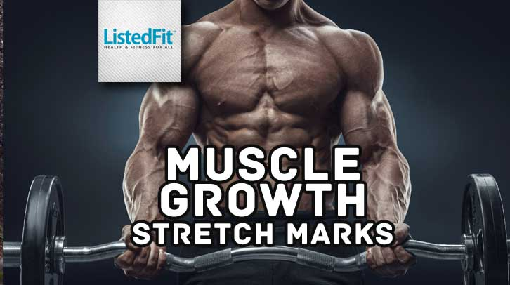 Stretch Marks From Muscle Growth - All You Need to Know