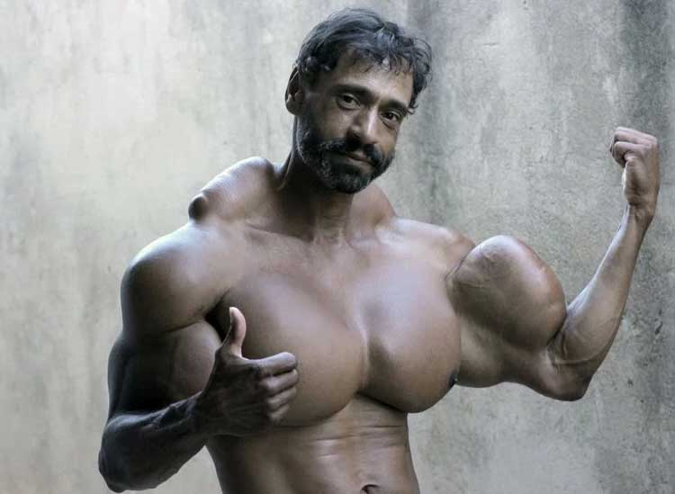 synthol-abuse-pecs-6