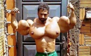 Bodybuilder who pumps oil into his muscles and now looks…