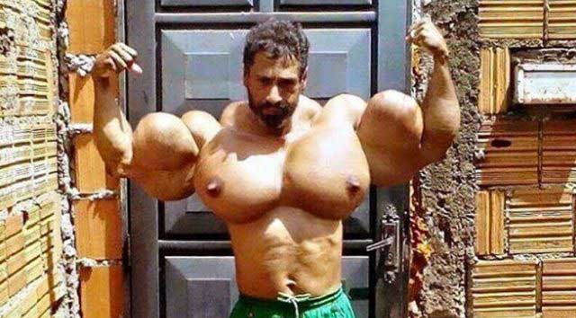 synthol-abuse pecs-guy-640x354