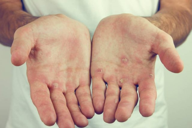 Calluses on Hands from Pull-Ups 6